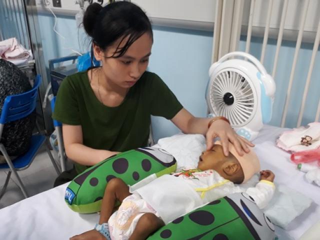 Thắt lòng bé trai 5 tháng tuổi bị hoại tử ruột phải cắt gần hết sau bữa ăn đầu đời