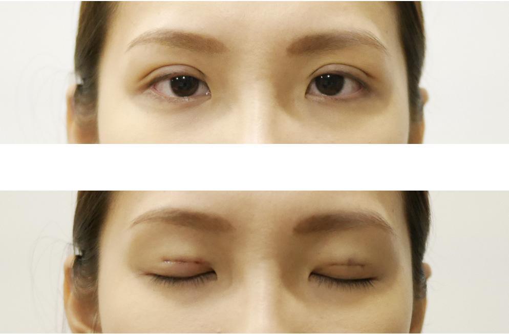 Không phải ai cũng biết nhấn mí mắt có hại không và cần lưu ý gì