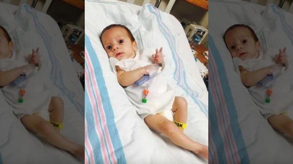Sau sinh, bố mẹ bàng hoàng phát hiện con từng đột quỵ trong tử cung