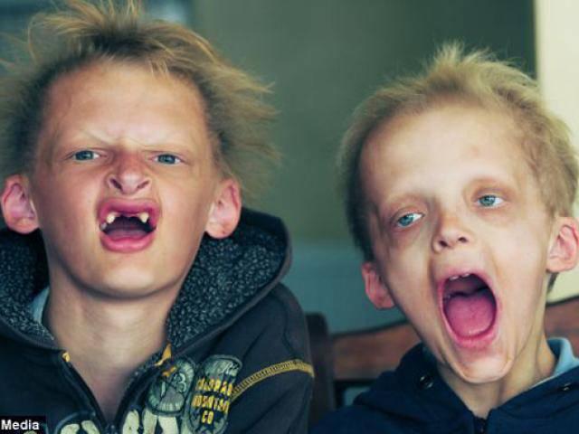 Hội chứng kỳ lạ biến hai anh em ruột thành ma cà rồng, không thể đi ra trời nắng