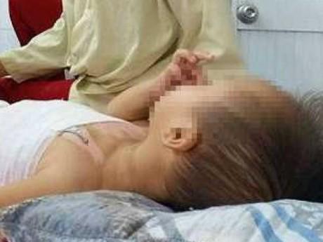 """Bôi tinh dầu tràm giữ ấm cho con 6 tháng tuổi, mẹ """"tá hỏa"""" khi thấy ngực bé phồng rộp"""