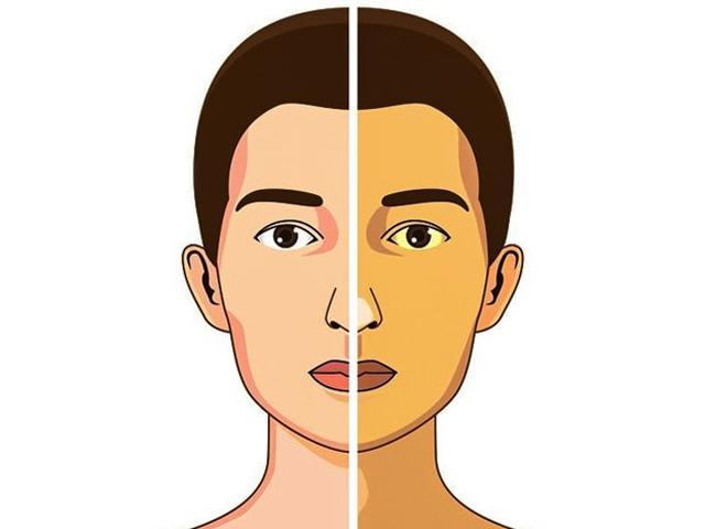 Những dấu hiệu tưởng là bệnh nan y nhưng thực chất là do thiếu vitamin B12