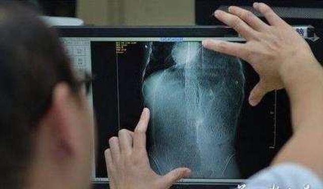 Bác sĩ phát hiện bệnh của Tiểu Đào đã chuyển thành ung thư.