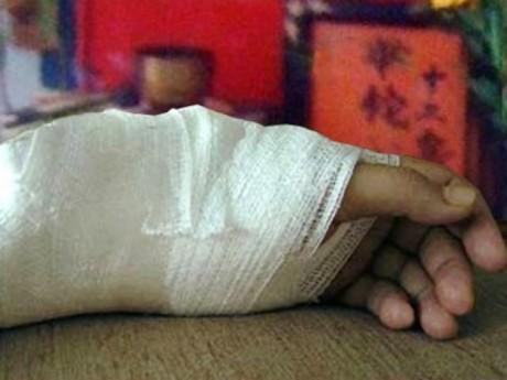 Bé gái hoại tử xương do mẹ phạm sai lầm khi con gãy tay, không ít người vẫn áp dụng