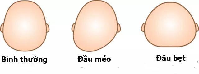 biet duoc su that nay, nhieu me viet se khong cho con so sinh nam goi nua - 4